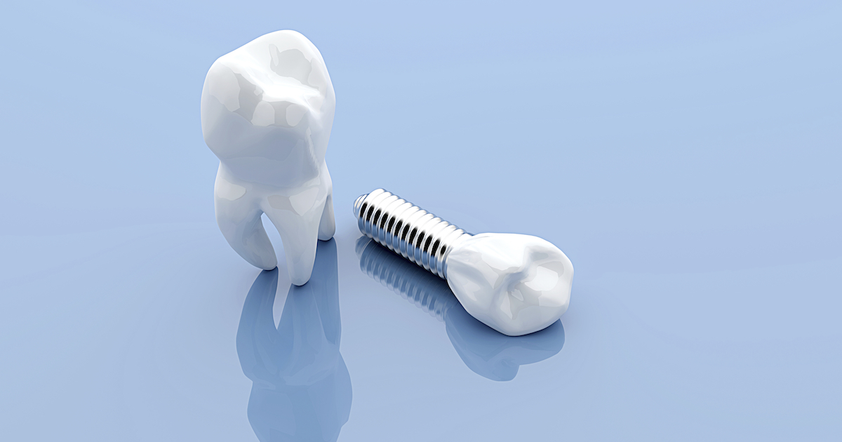 Dental implant and teeth, isolated on blue medical background