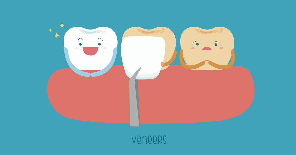 dca-blog-254-Dental-Veneers_1200x630