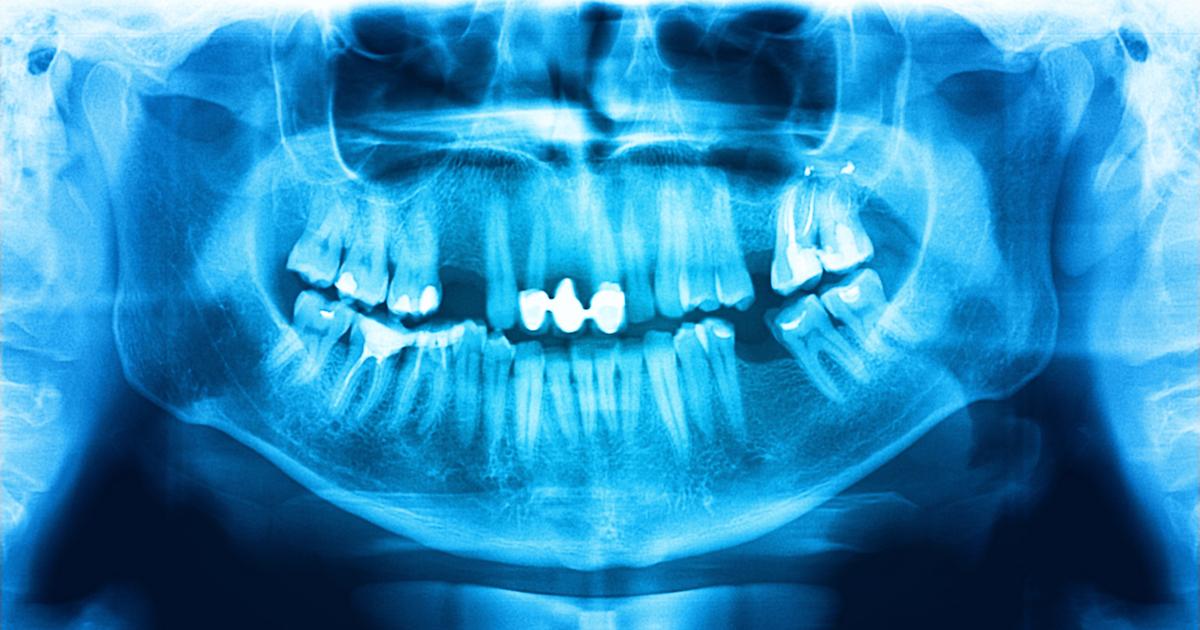 Dental-X-Rays-blog_041515