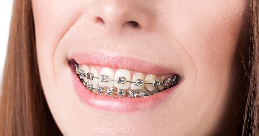 braces-blog_021515