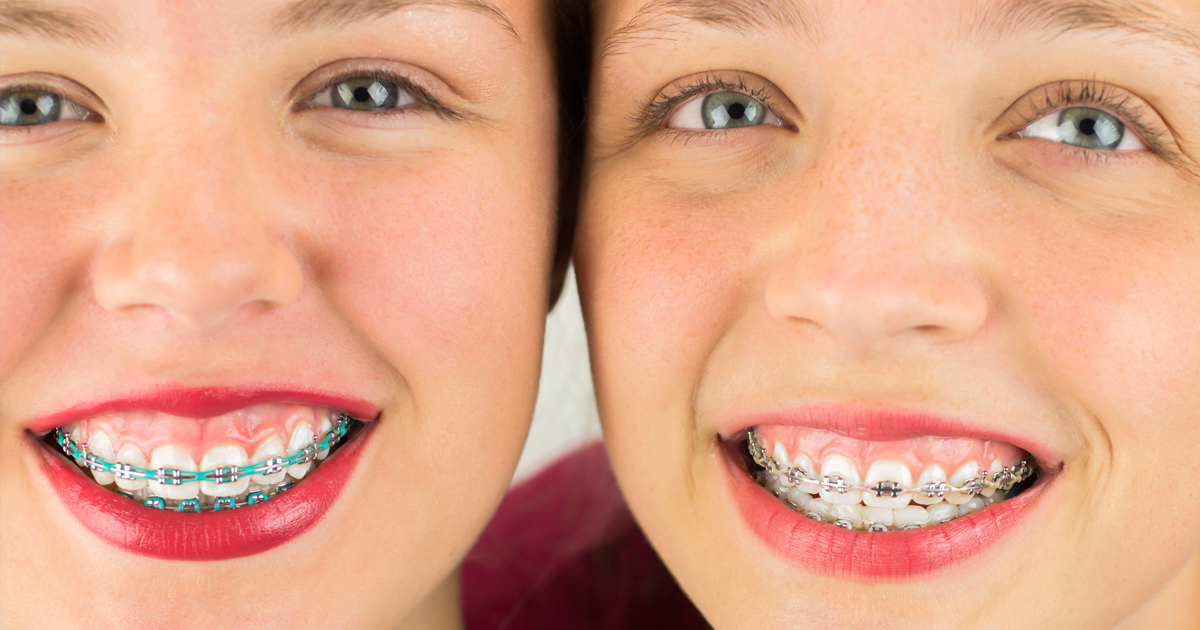 dca-blog_article-36_choose-an-orthodontist_1200x630